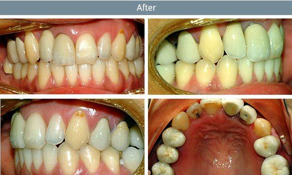 dental-implants-after