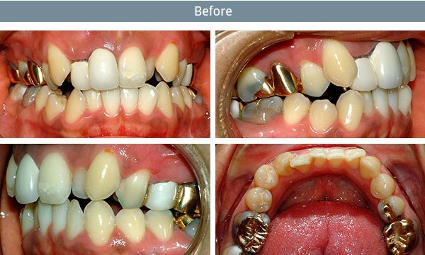 dental-implants-before