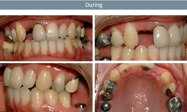 dental-implants-during
