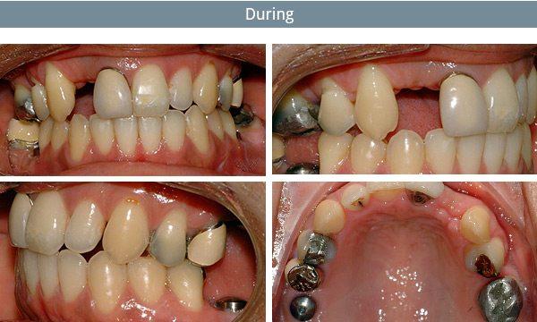 dental-implants-during