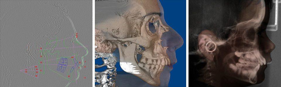 ortho3-orthodontist-sydney