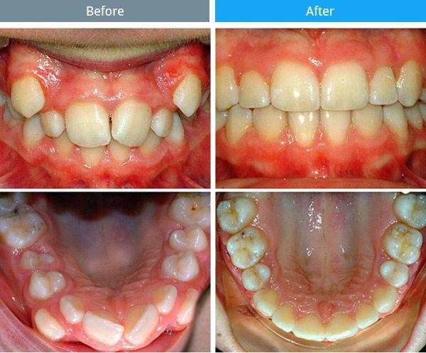 orthodontics-01