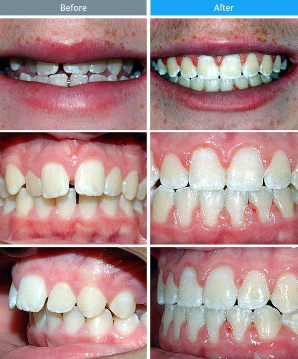 orthodontics-02