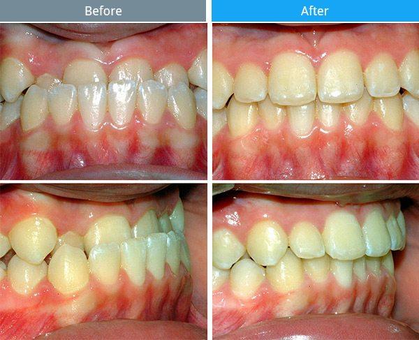orthodontics-03