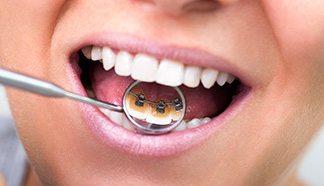 lingual-braces-ortho3