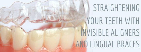 Straighten your teeth with invisible aligners and braces