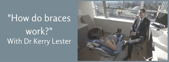 how do braces work from a Sydney orthodontist