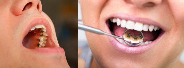 Braces Sydney - orthodontist - how do lingual braces work?
