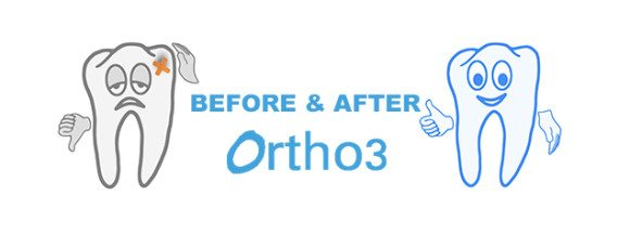 Before and After Ortho3
